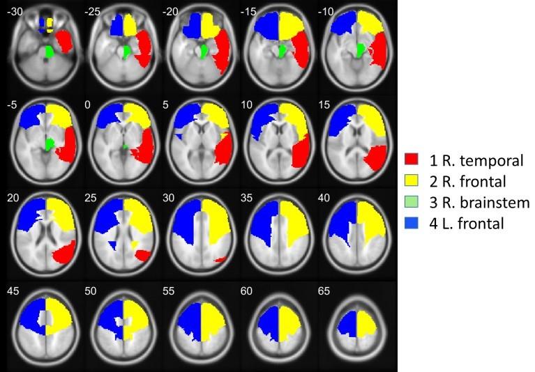 Meditación y Neurociencia. El Silencio Mental protege tu cerebro, según estudio de la ULL